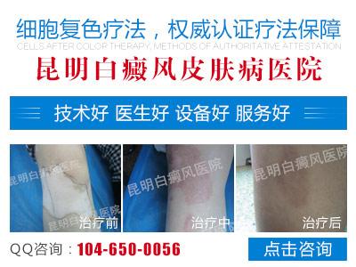 https://kf7.kuaishang.cn/bs/im.htm?cas=56595___578080&fi=66924&sText=youhua&ref=hzyouhuaa