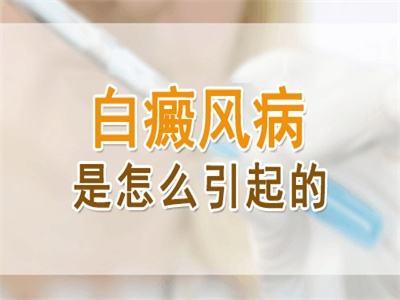 <a href=https://m.kunmingbdf.com/ target=_blank class=infotextkey>昆明白癜风医院</a>排名:引发白癜风的因素有哪些