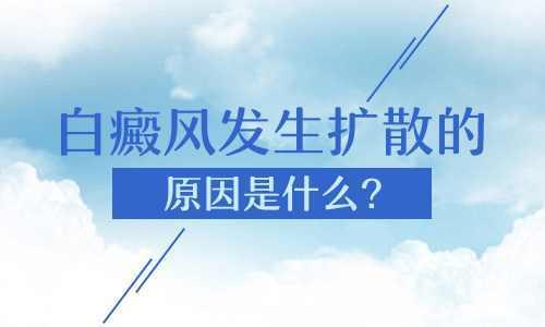 昆明白癜风专科治疗医院:为什么白癜风会扩散呢