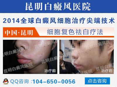 嘴角的白癜风应怎样治疗呢