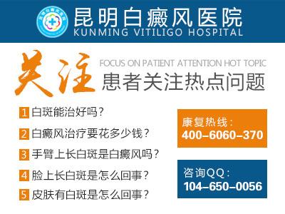 白癜风发病初期有哪些症状呢