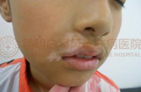 11岁男孩嘴角患白癜风4个月治愈